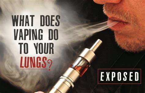 Vaping Exposed